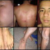 AReCIA repudia la tortura y violencia policial contra dos jóvenes de La Garganta Poderosa